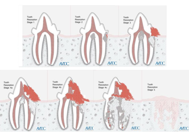 Resorption Stages